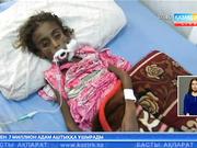 Йеменде 7 миллион адам аштыққа ұшырады